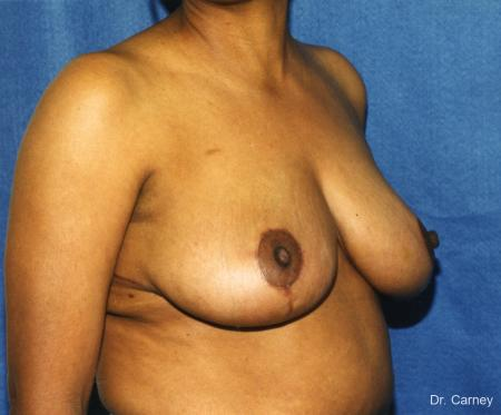 Virginia Beach Breast Reduction 1228. -  After Image 2