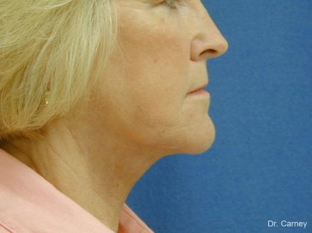 Virginia Beach Neck Lift 1207 -  After Image 2