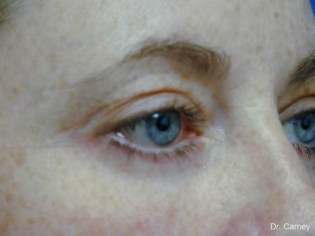 Virginia Beach Eyelid Lift 1138 -  After Image 2