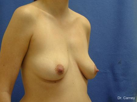 Virginia Beach Combo Procedures Breast 1182 - Before Image 2