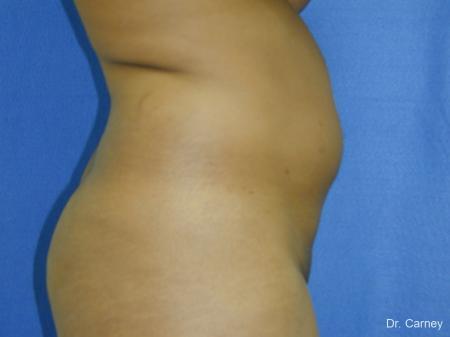 Virginia Beach Liposuction 1283 - Before Image 2