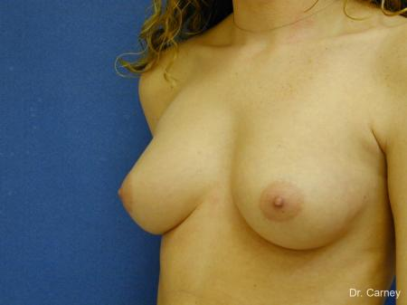 Virginia Beach Breast Augmentation 1089 - Before Image 2