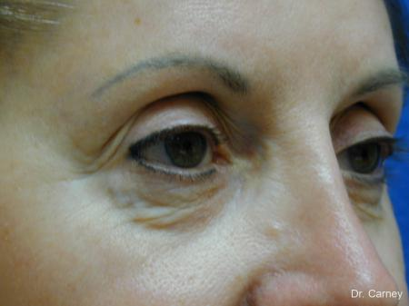 Virginia Beach Brow Lift 1216 - Before Image 2