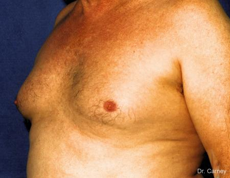 Virginia Beach Gynecomastia 1227 - Before Image