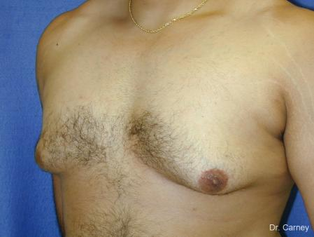 Virginia Beach Gynecomastia 1255 - Before and After Image 5