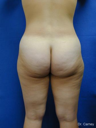 Virginia Beach Liposuction 1276 - Before Image 3