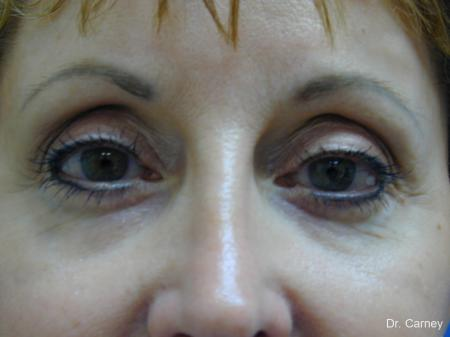 Virginia Beach Brow Lift 1216 -  After Image 4