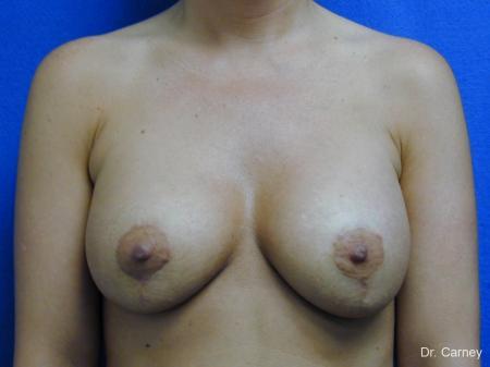 Virginia Beach Combo Procedures Breast 1096 -  After Image 3