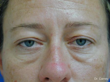 Virginia Beach Eyelid Lift 1209 - Before Image