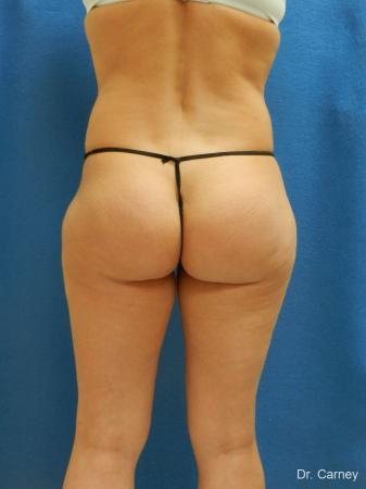 Brazilian Butt Lift: Patient 7 - After Image 3