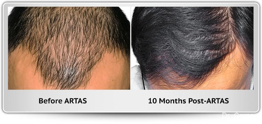 Hair Transplantation: Patient 5 - Before and After Image