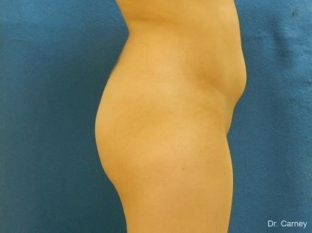 Virginia Beach Brazilian Butt Lift 1221 - Before Image