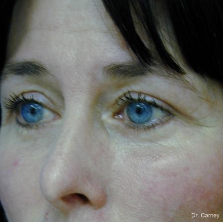 Virginia Beach Eyelid Lift 1139 -  After Image 3
