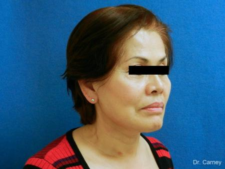 Virginia Beach Neck Lift 1268 -  After Image 2