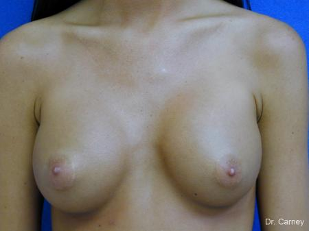 Virginia Beach Breast Augmentation 1082 -  After Image 3