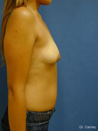 Virginia Beach Breast Augmentation 1860 - Before Image 3