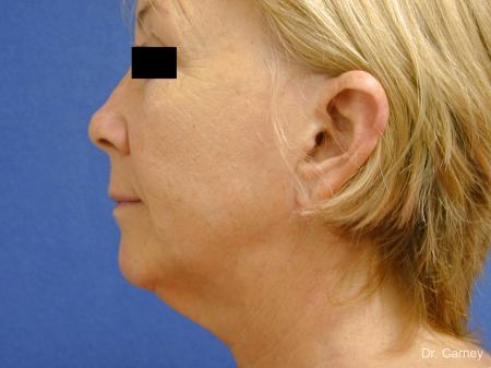 Virginia Beach Laser Skin Resurfacing Face 1263 - Before and After Image 4