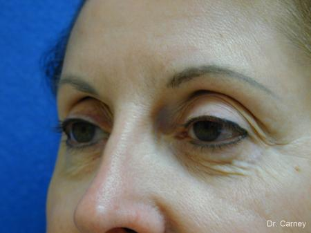 Virginia Beach Brow Lift 1216 - Before Image 3