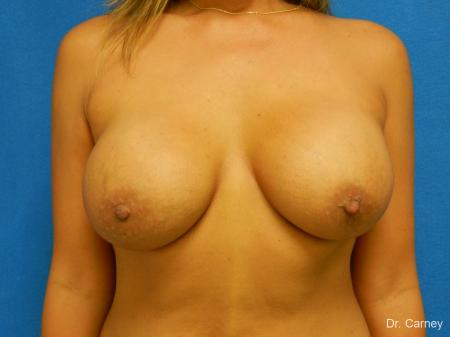 Virginia Beach Breast Augmentation 1860 -  After Image 1