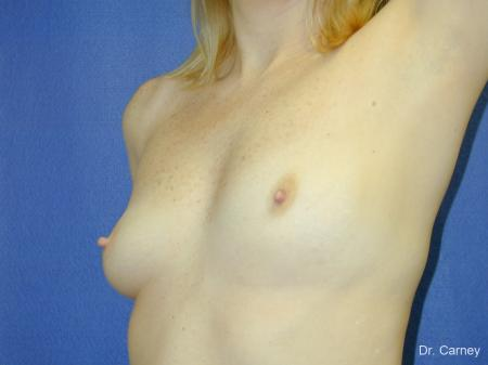 Virginia Beach Breast Augmentation 1084 - Before Image