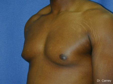 Virginia Beach Gynecomastia 1226 - Before Image 3