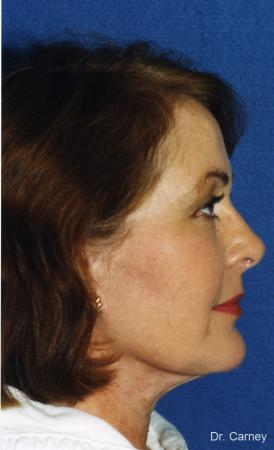 Virginia Beach Laser Skin Resurfacing - Face -  After Image 3