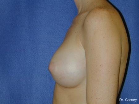 Virginia Beach Breast Augmentation 1090 - After Image