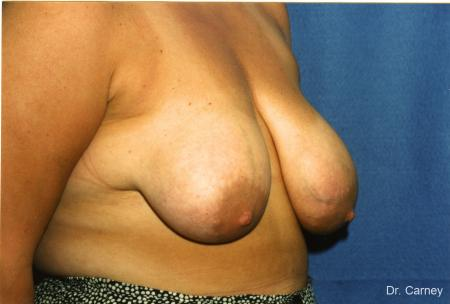 Virginia Beach Breast Lift 1190 - Before Image