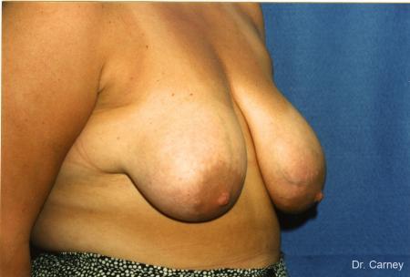 Virginia Beach Breast Lift 1190 - Before Image 1