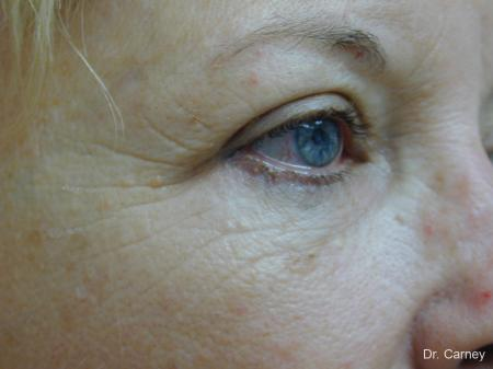 Virginia Beach Brow Lift 1266 - Before Image 4