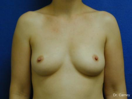 Virginia Beach Breast Augmentation 1086 - Before and After Image 3