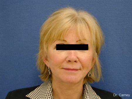 Virginia Beach Facelift 1262 - After Image