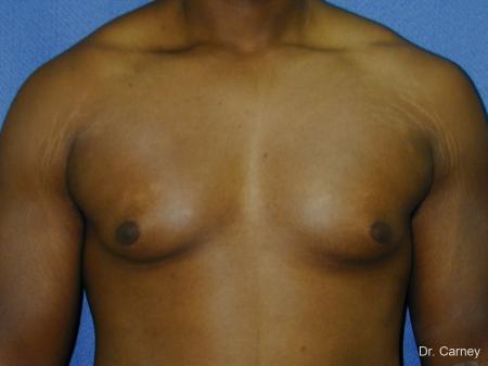 Virginia Beach Gynecomastia 1226 - Before Image 1