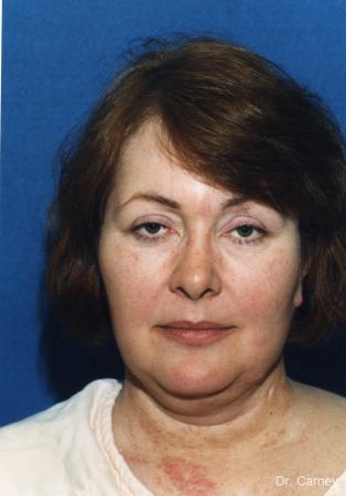 Virginia Beach Laser Skin Resurfacing - Face - Before Image 2