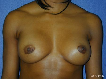Virginia Beach Breast Augmentation 1085 -  After Image 3