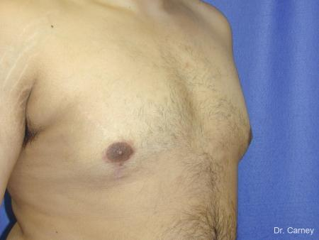 Virginia Beach Gynecomastia 1255 -  After Image 3