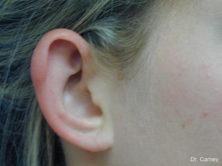Virginia Beach Otoplasty Earlobe Repair 1223 - Before and After Image 4