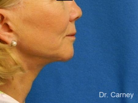 Virginia Beach Neck Lift 1264 -  After Image 2
