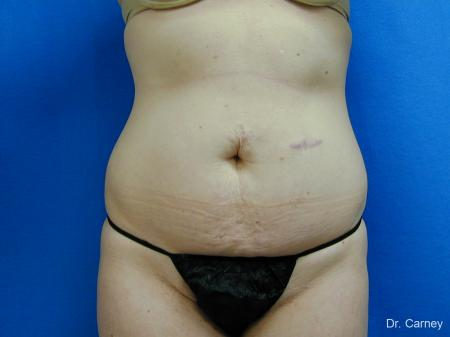Virginia Beach Tummy Tuck 1251 - Before Image