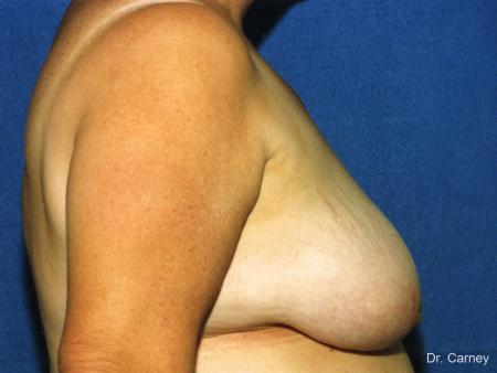 Virginia Beach Breast Reduction 1234 - Before Image 2