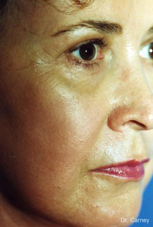 Virginia Beach Laser Skin Resurfacing - Face 1259 -  After Image 3