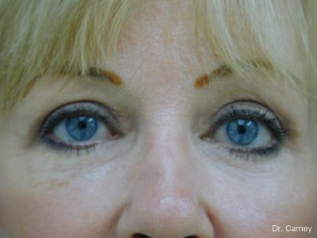 Virginia Beach Brow Lift 1266 -  After Image 3
