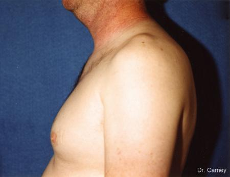 Virginia Beach Gynecomastia 1227 - Before and After Image 2