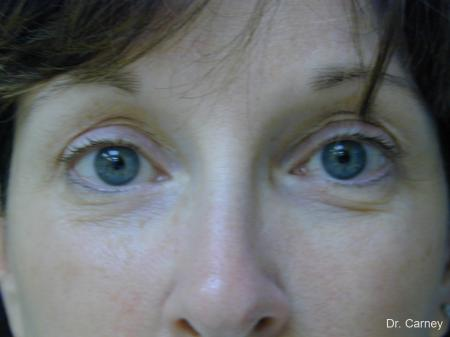 Virginia Beach Brow Lift 1217 -  After Image 2