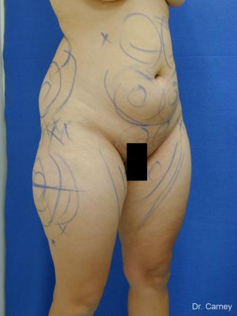 Virginia Beach Liposuction 1284 - Before and After Image 5