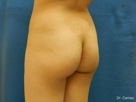 Virginia Beach Brazilian Butt Lift 1221 - Before Image 4