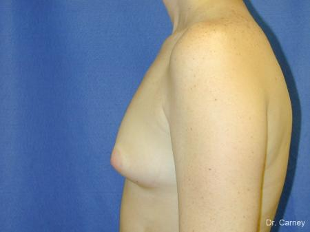 Virginia Beach Breast Augmentation 1090 - Before Image