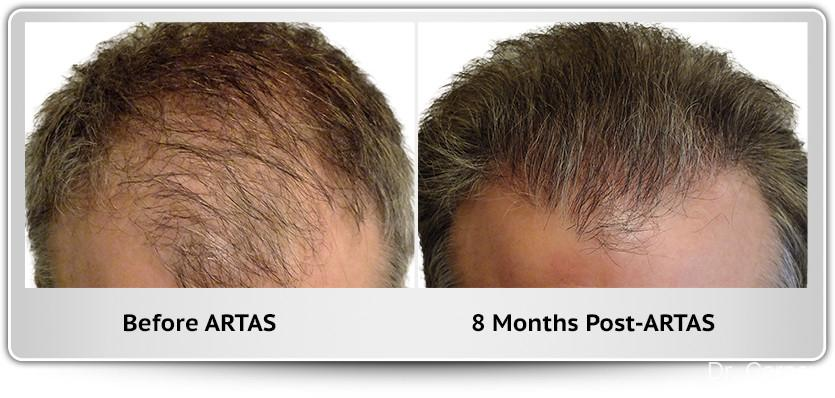 Hair Transplantation: Patient 8 - Before and After Image