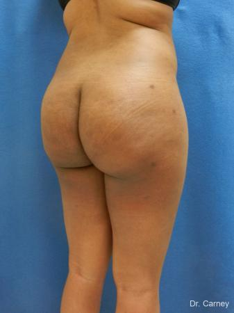 Brazilian Butt Lift: Patient 6 - After Image 4