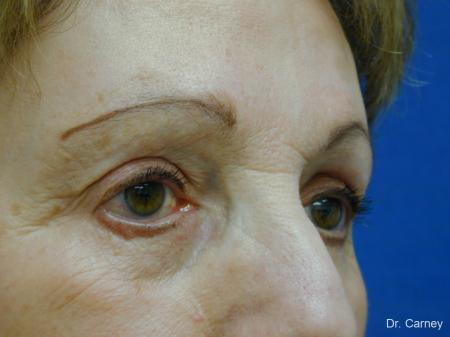 Virginia Beach Eyelid Lift 1128 - Before and After Image 2